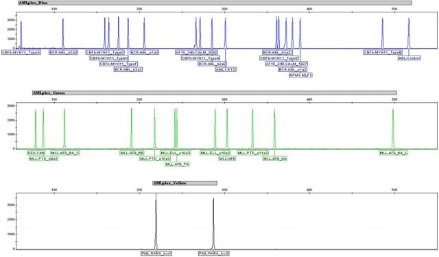 Der Mentype® AMLplexQS identifiziert nicht nur die häufigen, sondern auch die selteneren genetischen Veränderungen der AML in einer Reaktion.