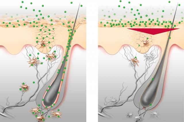 BIO @ Bio-News-Net | Bei Allergie Eucerin ph5 aus der Versandapotheke mediherz.de