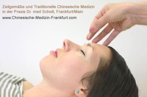 Frankfurt-News.Net - Frankfurt Infos & Frankfurt Tipps | Die zeitgemäße und traditionelle chinesische Medizin (TCM) stellt wirksame Therapien gegen Allergien und chronische Infekte bereit.