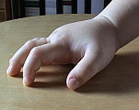 Oesterreicht-News-247.de - Österreich Infos & Österreich Tipps | HAE - Schwellung der Hand