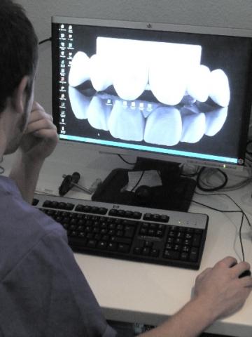 Wien-News.de - Wien Infos & Wien Tipps | Zahnersatz ist heute High-Tech und eine Sache von Spezialisten