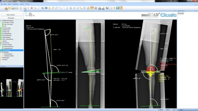Europa-247.de - Europa Infos & Europa Tipps | Das Bild zeigt die Planung einer Knie-Endoprothetik.