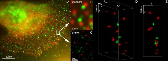 Mainz-Infos.de - Mainz Infos & Mainz Tipps | In der pharmazeutischen Forschung und personalisierten Medizin spielt die Super Resolution Mikroskopie LIMON (Kombination SPDM + SMI) zukünftig eine wichtige Rolle. Abb: Brustkrebs 3D Nanoskopie mit Her3 und Her2,Zielmolekül des Medikaments Herceptin