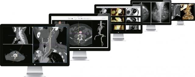 Rom-News.de - Rom Infos & Rom Tipps | aycan OsiriX PRO – Die Highspeed-Workstation für Routine- und Spezialaufgaben.