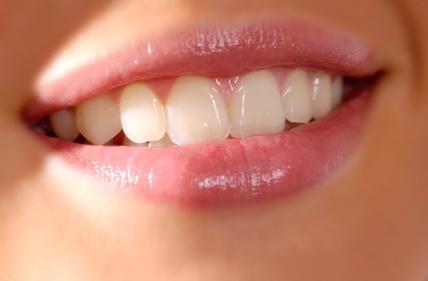 Kariesschutz: ordentliche Mundhygiene für schöne Zähne
