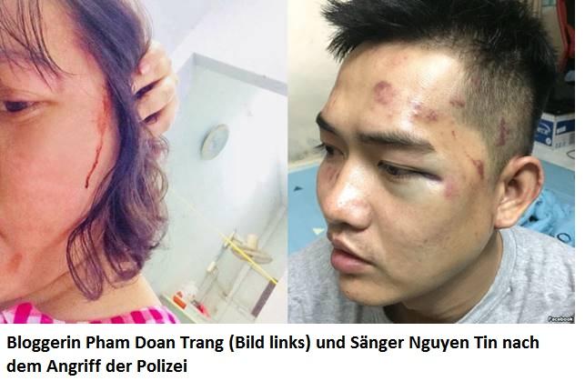 China-News-247.de - China Infos & China Tipps | Bloggerin Pham Doan Trang (Bild links) und Sänger Nguyen Tin nach dem Angriff der Polizei