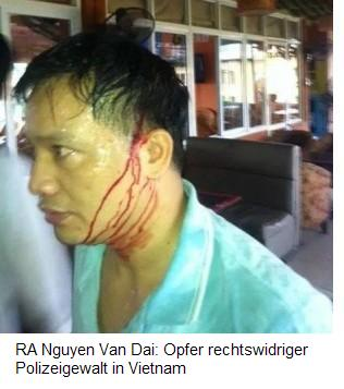Europa-247.de - Europa Infos & Europa Tipps | A Nguyen Van Dai: Opfer rechtswidriger Polizeigewalt in Vietnam